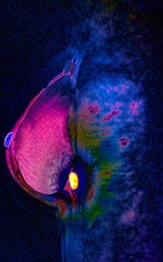 Breast cancer, MRI scan