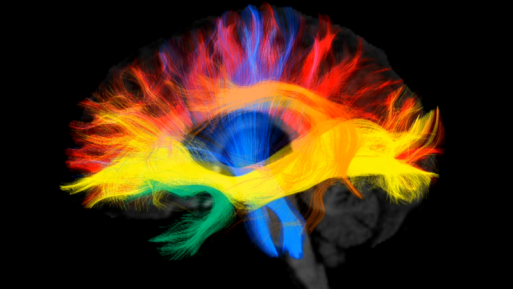 The brain depends on insulin to function properly
