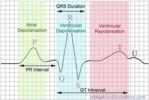 A normal ECG tracing shows electrical activity of the heart