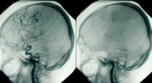 The image on the right shows a dead brain
