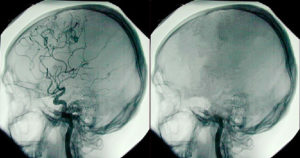 Side by side images of brains; one healthy one dead