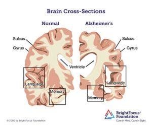 An Alzheimer's affected brain versus a normal brain