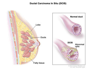 Drawing of DCIS the cancer most often detected by mammograms