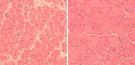 Mice Muscle Cells (old right) Credit: www.livescience.com