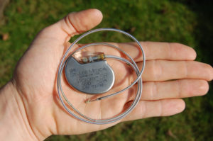 A man holding a pacemaker, which doesn't have to be removed during alkaline hydrolysis