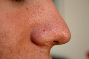 A close-up photo of a nose for odor test