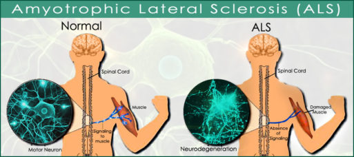 Illustration of normal nerve and muscle vs. muscles and nerves affected by ALS