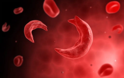Sickle cell disease causes abnormally shaped red blood cells shown here