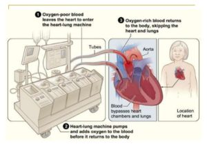 heart lung machine used in heart surgery