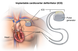 ICD device helps restart the heart of patients with heart disase